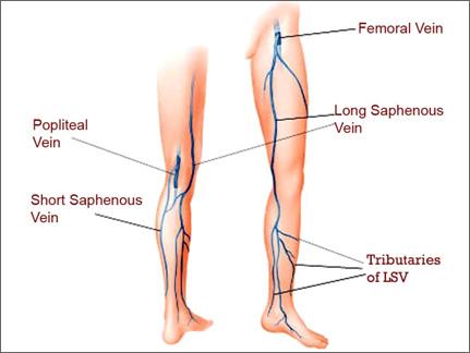 varicose veins superficial veins deep vein perforating